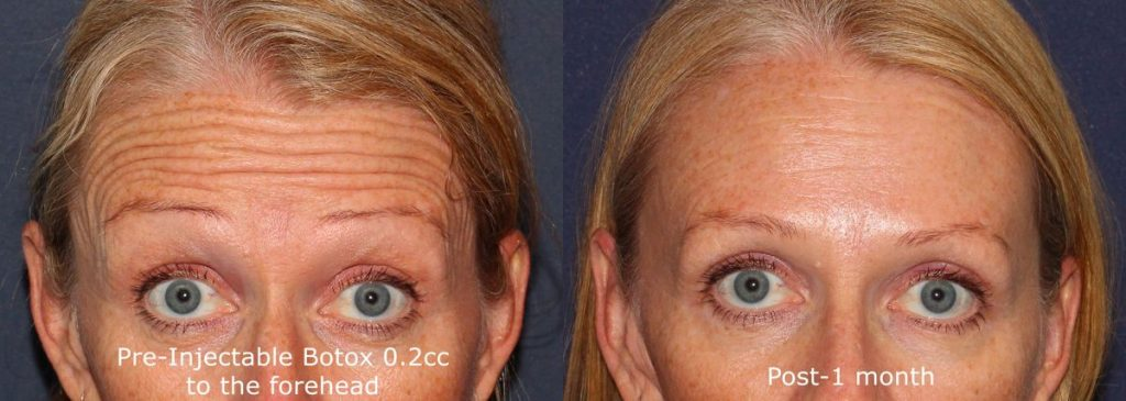 Actual un-retouched patient before and after Botox injections to reduce forehead lines by Dr. Fabi. Disclaimer: Results may vary from patient to patient. Results are not guaranteed.