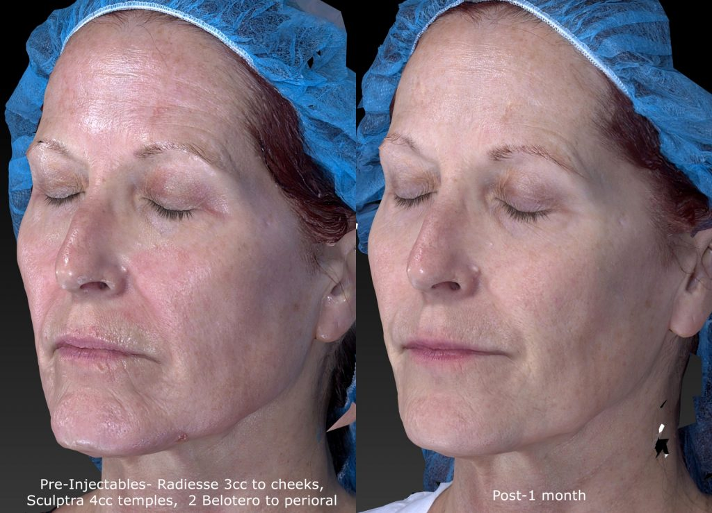Actual un-retouched patient before and after Radiesse, Belotero and Sculptra for wrinkles and facial rejuvenation by Dr. Fabi. Disclaimer: Results may vary from patient to patient. Results are not guaranteed.