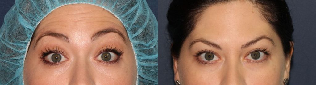 Actual un-retouched patient before and after Botox injections to treat forehead wrinkles by Dr. Fabi. Disclaimer: Results may vary from patient to patient. Results are not guaranteed.