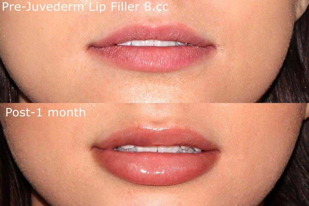 Actual un-retouched patient before and after filler injections to augment the lips by Dr. Fabi. Disclaimer: Results may vary from patient to patient. Results are not guaranteed.