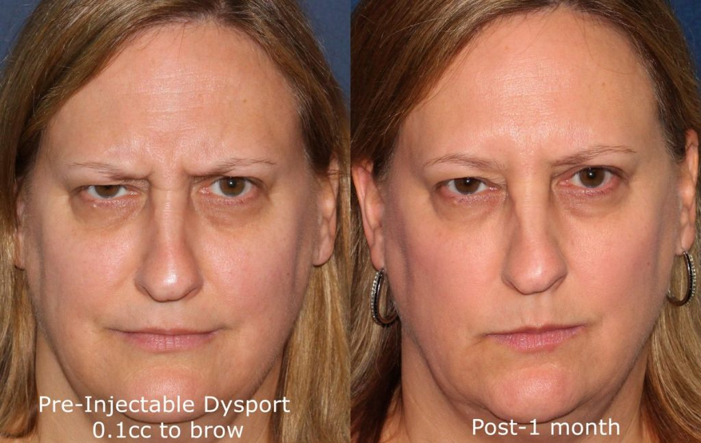 Actual un-retouched patient before and after Dysport injections to lift the brow by Dr. Fabi. Disclaimer: Results may vary from patient to patient. Results are not guaranteed.