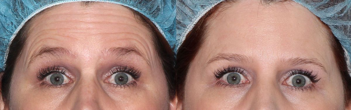 Actual un-retouched patient before and after Botox injections to treat horizontal forehead lines by Dr. Fabi. Disclaimer: Results may vary from patient to patient. Results are not guaranteed.