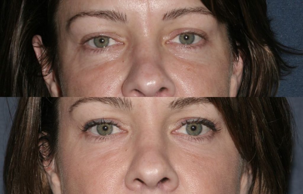 Actual un-retouched patient before and after Restylane injections to reduce dark circles under the eyes by Dr. Fabi. Disclaimer: Results may vary from patient to patient. Results are not guaranteed.