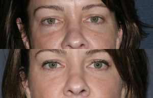 Before and after front image of Restylane treatment on a female's hollowing under the eyes performed by Dr. Fabi at our San Diego medical spa