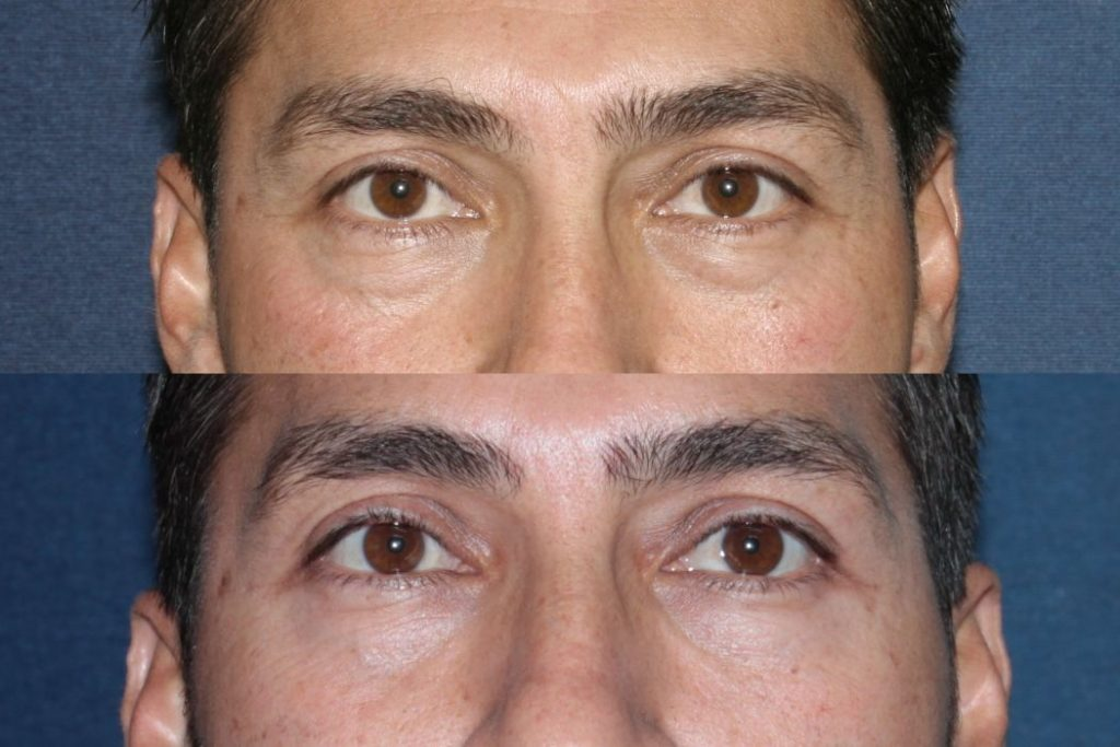 Actual un-retouched patient before and after Restylane injections to reduce dark circles and eye bags by Dr. Fabi. Disclaimer: Results may vary from patient to patient. Results are not guaranteed.