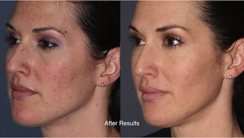 Actual un-retouched patient before and after ResurFX laser to treat sun damage and rejuvenate the skin by Dr. Fabi. Disclaimer: Results may vary from patient to patient. Results are not guaranteed.