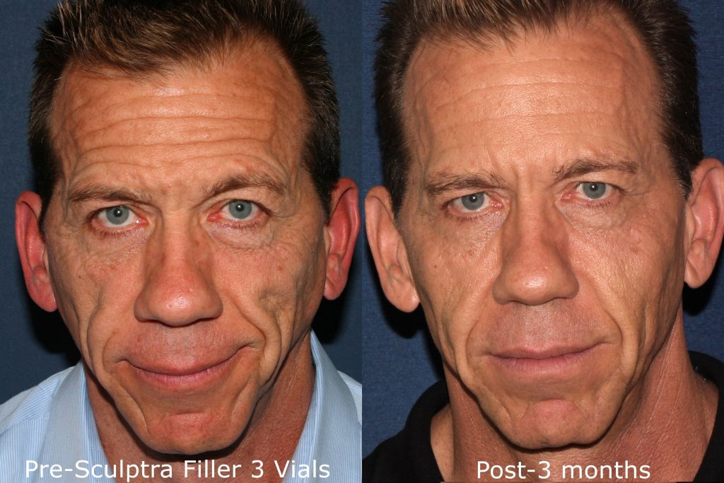 Actual un-retouched patient before and after Sculptra injections to treat wrinkles and volume loss by Dr. Fabi. Disclaimer: Results may vary from patient to patient. Results are not guaranteed.