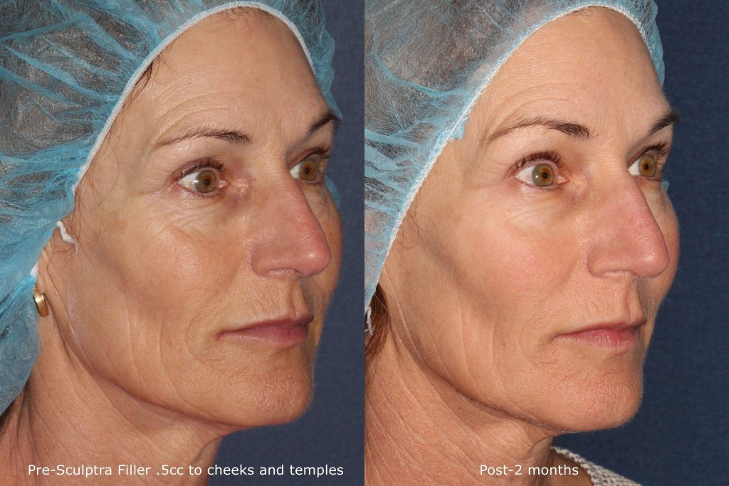 Actual un-retouched patient before and after Sculptra injections to augment cheeks and temples by Dr. Fabi. Disclaimer: Results may vary from patient to patient. Results are not guaranteed.