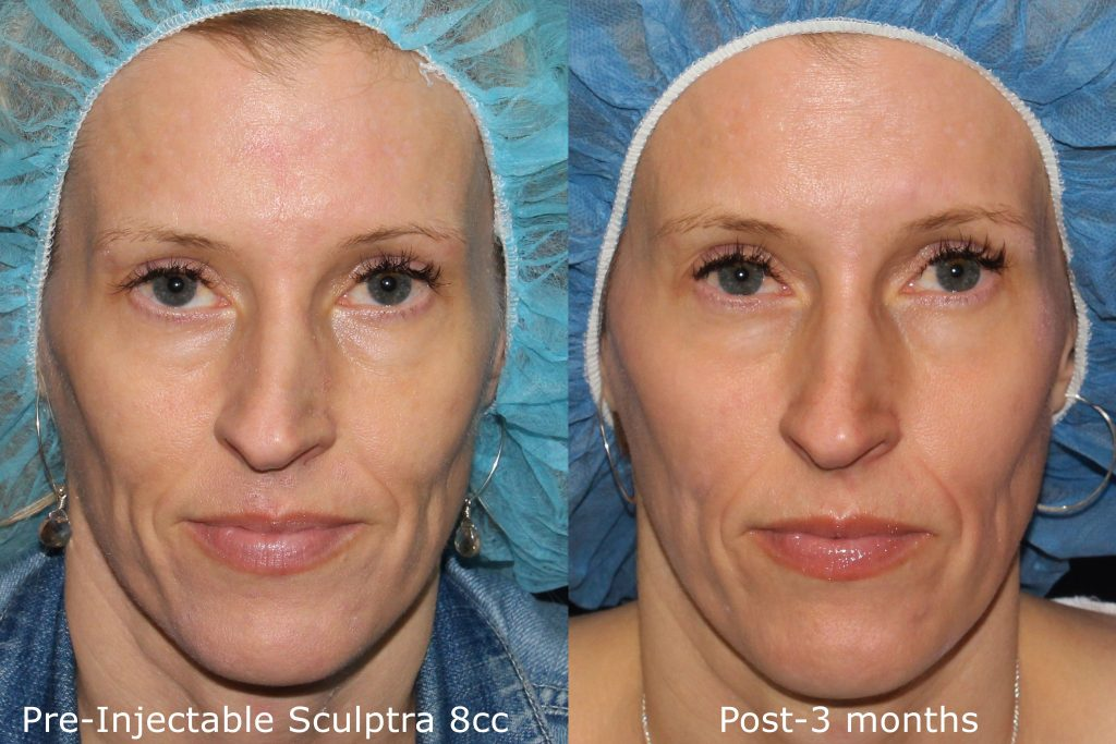 Actual un-retouched patient before and after Sculptra injections to rejuvenate the midface by Dr. Fabi. Disclaimer: Results may vary from patient to patient. Results are not guaranteed.