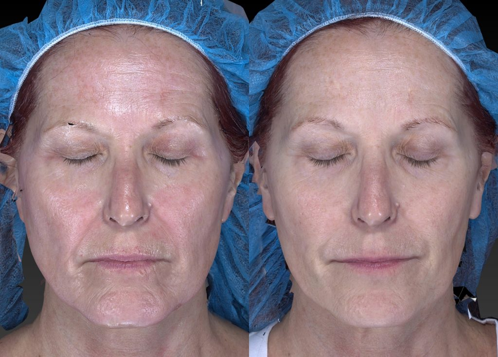 Actual un-retouched patient before and after Sculptra, Radiesse and Belotero for wrinkles and facial rejuvenation by Dr. Fabi. Disclaimer: Results may vary from patient to patient. Results are not guaranteed.