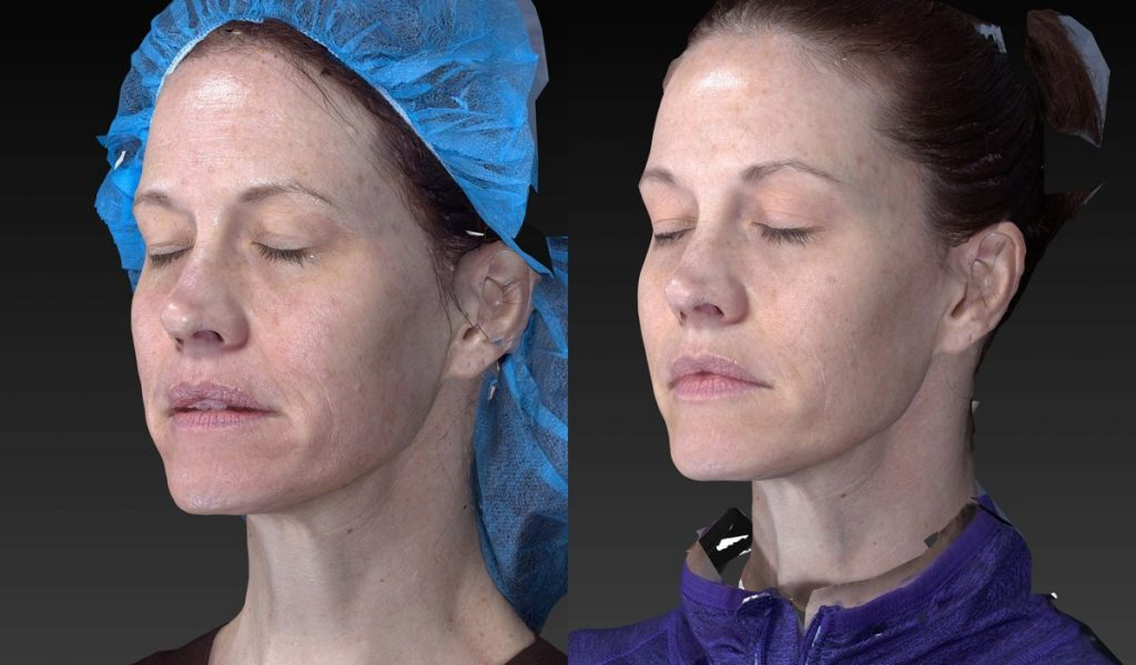 Actual un-retouched patient before and after filler injections to restore volume to the midface by Dr. Fabi. Disclaimer: Results may vary from patient to patient. Results are not guaranteed.