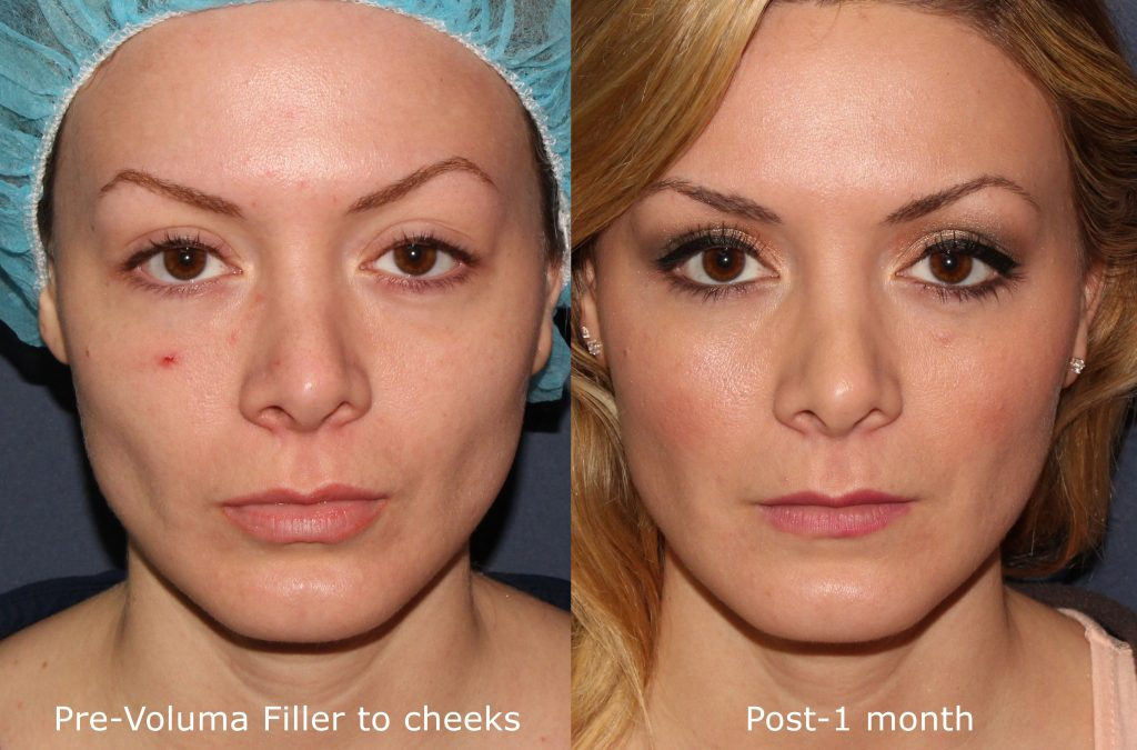 Actual un-retouched patient before and after Voluma injections for cheek augmentation by Dr. Fabi. Disclaimer: Results may vary from patient to patient. Results are not guaranteed.