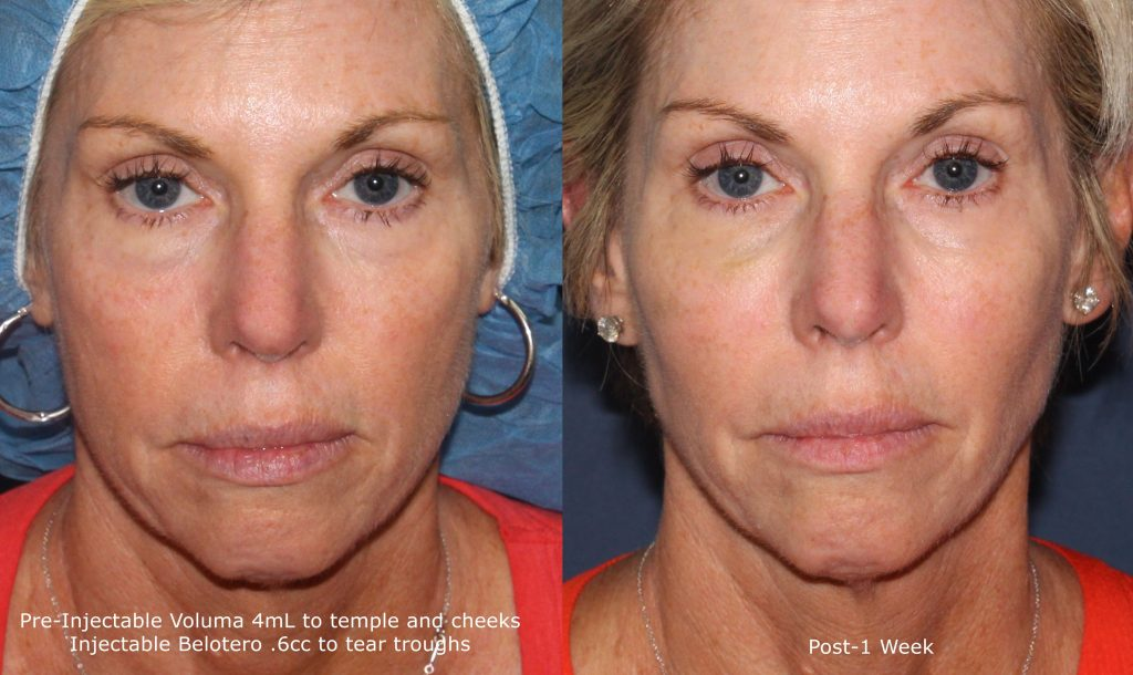 Actual unretouched patient before and after Belotero and Voluma injections for a liquid facelift by Dr. Fabi. Disclaimer: Results may vary from patient to patient. Results are not guaranteed.