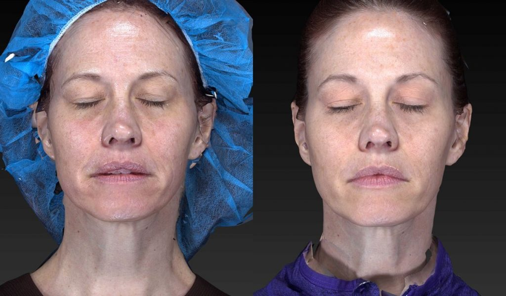 Actual un-retouched patient before and after filler injections for volume loss and wrinkles by Dr. Fabi. Disclaimer: Results may vary from patient to patient. Results are not guaranteed.