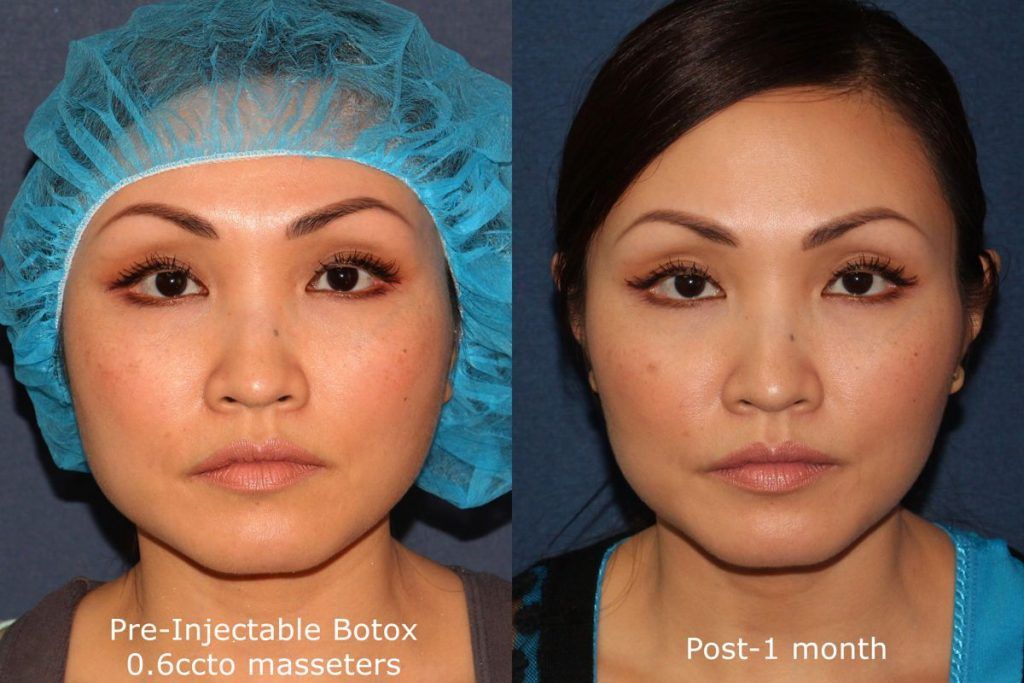 Actual un-retouched patient before and after Botox injections to the masseter muscle to slim the jawline by Dr. Fabi. Disclaimer: Results may vary from patient to patient. Results are not guaranteed.