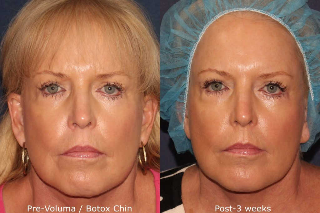 Actual un-retouched patient before and after Voluma and Botox treatment for chin by Dr. Fabi. Disclaimer: Results may vary from patient to patient. Results are not guaranteed.