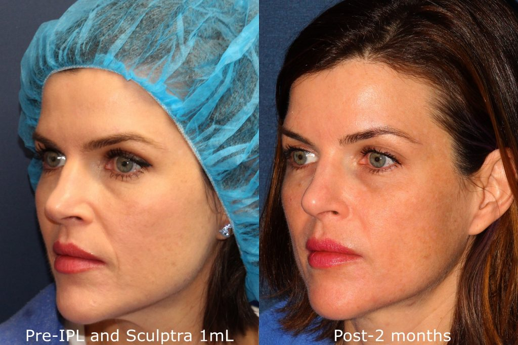 Actual un-retouched patient before and after Sculptra injections to treat nasolabial folds by Dr. Fabi. Disclaimer: Results may vary from patient to patient. Results are not guaranteed.