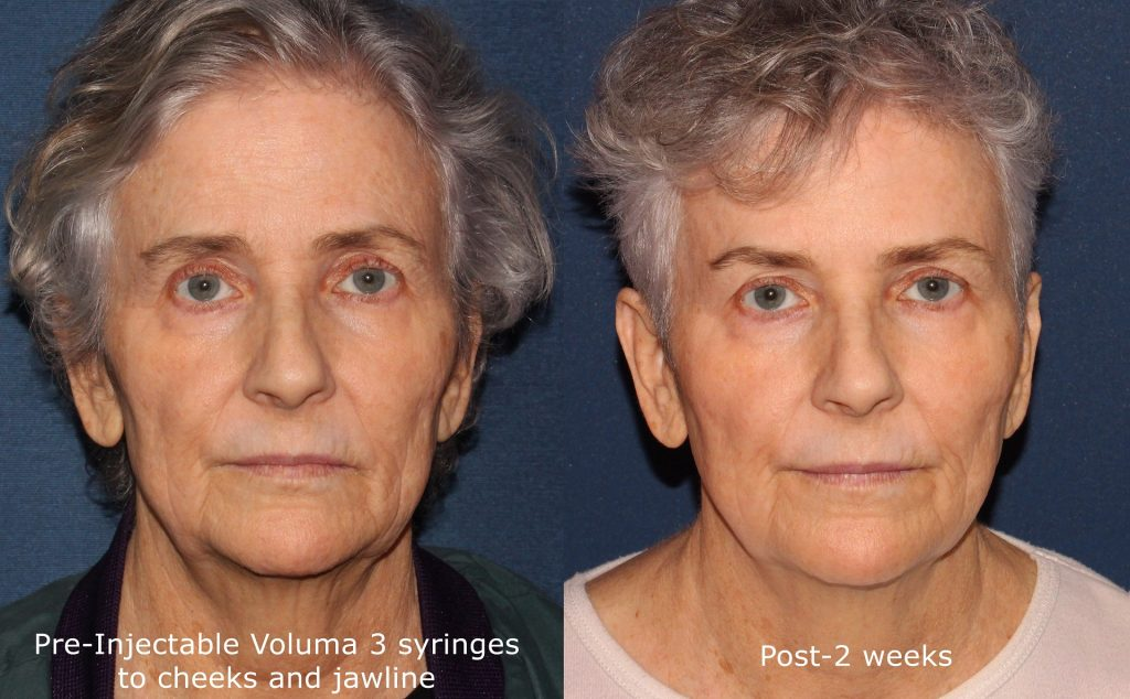 Actual un-retouched patient before and after Voluma injections to augment cheeks and jawline by Dr. Fabi. Disclaimer: Results may vary from patient to patient. Results are not guaranteed.