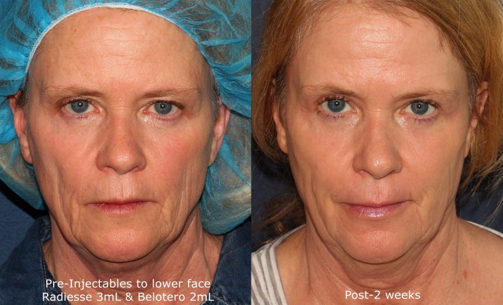 Actual un-retouched patient before and after Radiesse and Belotero injections for facial rejuvenation and wrinkle reduction by Dr. Wu. Disclaimer: Results may vary from patient to patient. Results are not guaranteed.