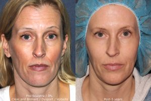Before and after front image of Sculptra, Dysport, Volbella, IPL, and Clear and Brilliant treatment on a female's face performed by Dr. Fabi at our San Diego medi spa