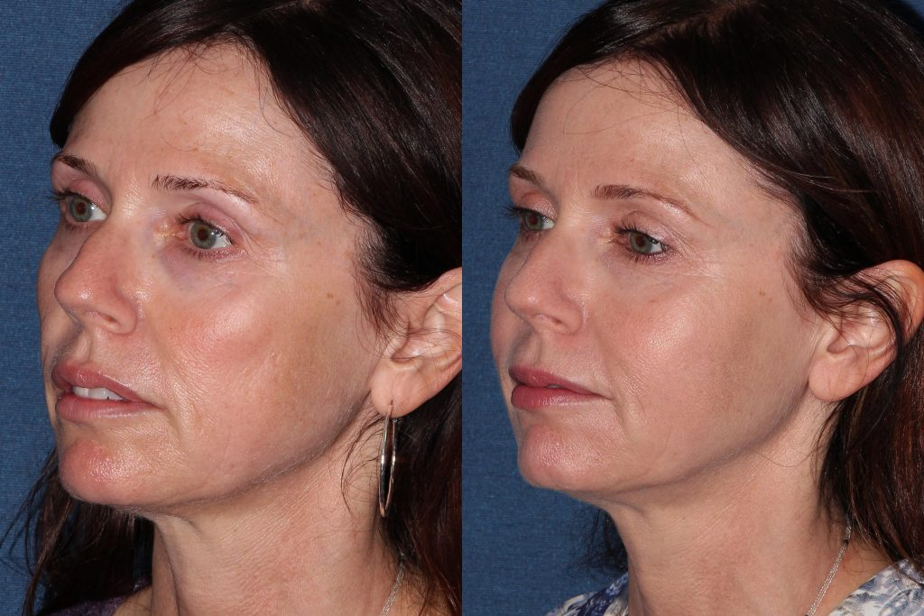 Actual un-retouched patient before and after Belotero injections for a liquid facelift by Dr. Groff. Disclaimer: Results may vary from patient to patient. Results are not guaranteed.