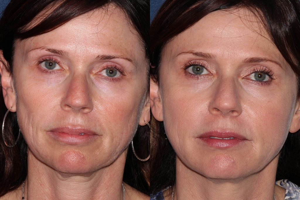 Actual un-retouched patient before and after Belotero filler treatment for liquid facelift by Dr. Groff. Disclaimer: Results may vary from patient to patient. Results are not guaranteed.