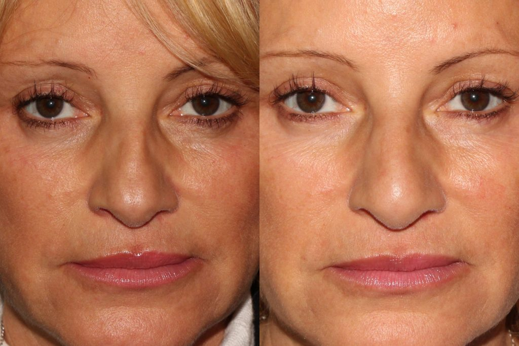 Liquid facelift using injectable fillers by Dr. Goldman. Disclaimer: Results may vary from patient to patient. Results are not guaranteed. Actual un-retouched patient before and after.