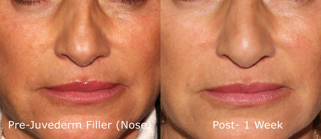 Actual un-retouched patient before and after Juvederm injections for non-surgical rhinoplasty by Dr. Goldman. Disclaimer: Results may vary from patient to patient. Results are not guaranteed.