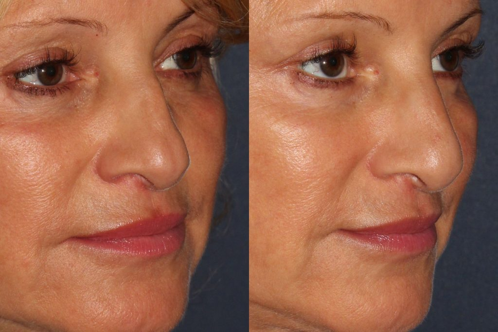 Actual un-retouched patient before and after filler treatment for liquid facelift by Dr. Goldman. Disclaimer: Results may vary from patient to patient. Results are not guaranteed.