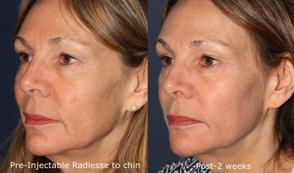 Actual un-retouched patient before and after Radiesse injections to augment the chin by Dr. Goldman. Disclaimer: Results may vary from patient to patient. Results are not guaranteed.