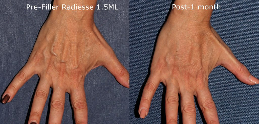 Actual un-retouched patient before and after hand rejuvenation using Radiesse injections by Dr. Goldman. Disclaimer: Results may vary from patient to patient. Results are not guaranteed.