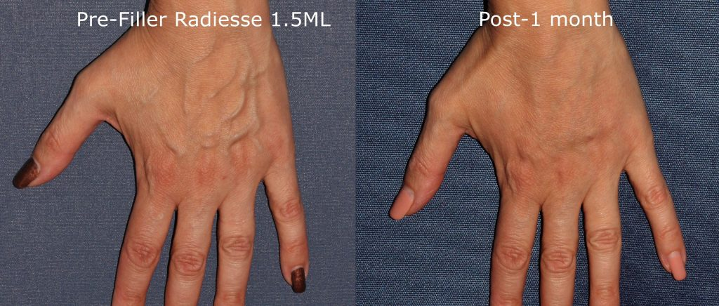 Actual un-retouched patient before and after Radiesse injections for hand rejuvenation by Dr. Goldman. Disclaimer: Results may vary from patient to patient. Results are not guaranteed.