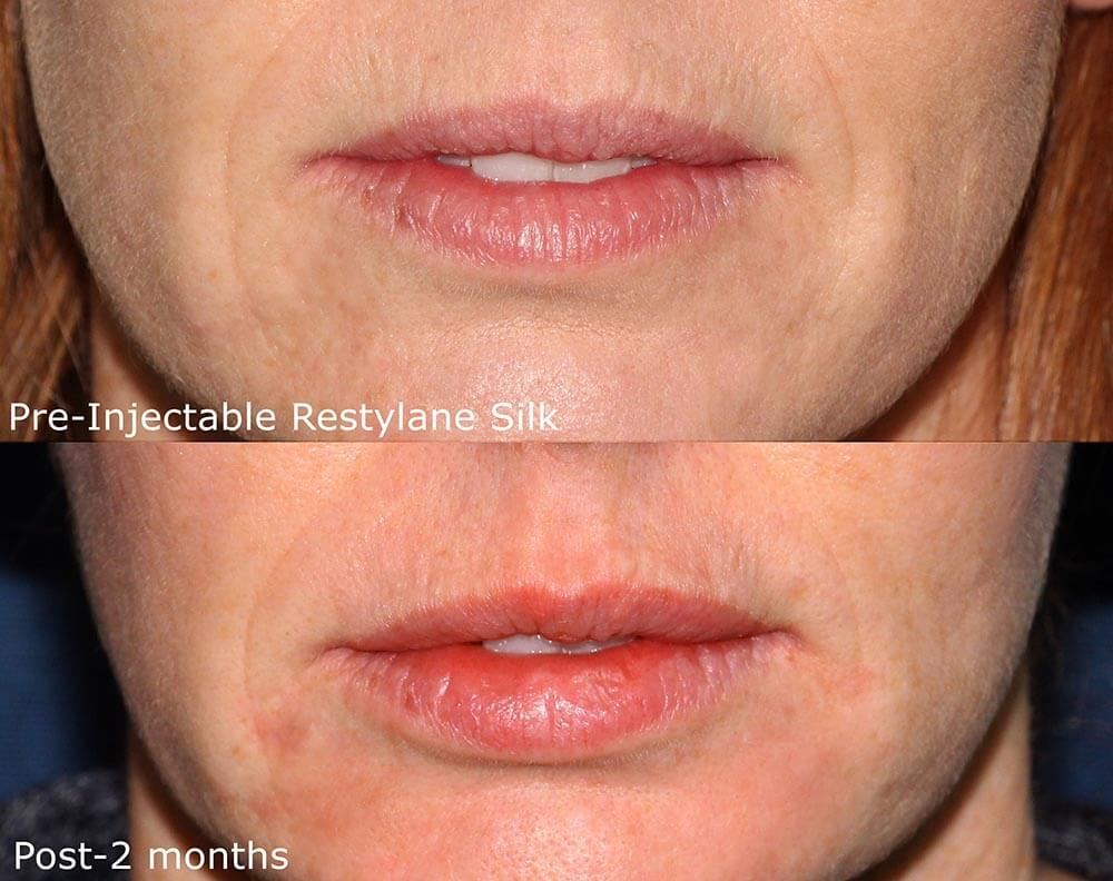 Actual un-retouched patient before and after Restylane Silk injections to augment the lips by Dr. Goldman. Disclaimer: Results may vary from patient to patient. Results are not guaranteed.