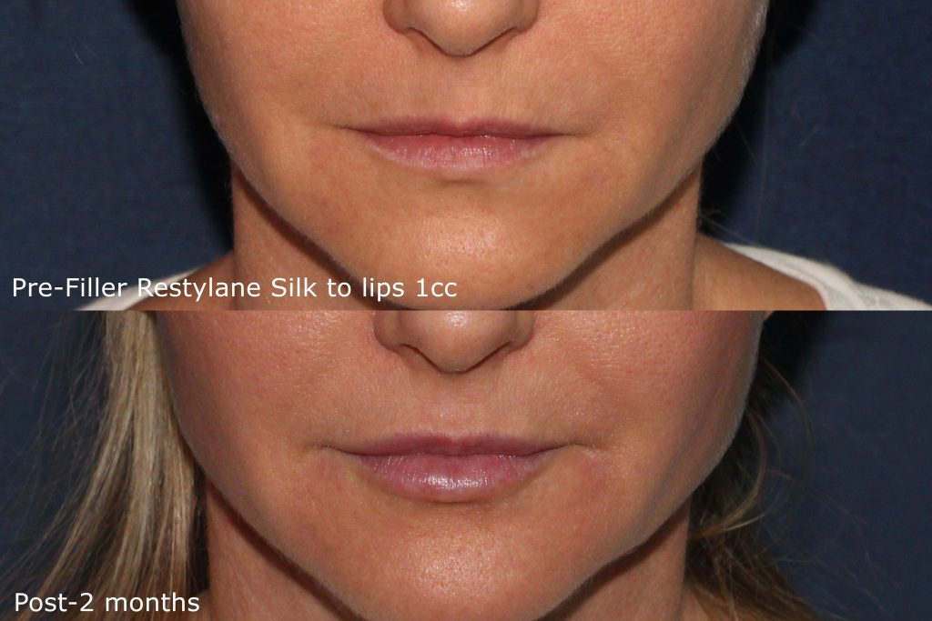 Actual un-retouched patient before and after Restylane Silk injections to augment the lips by Dr. Fabi. Disclaimer: Results may vary from patient to patient. Results are not guaranteed.