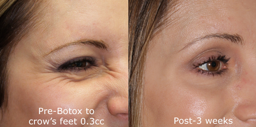 Actual un-retouched patient before and after Botox treatment for crow's feet by Dr. Groff. Disclaimer: Results may vary from patient to patient. Results are not guaranteed.