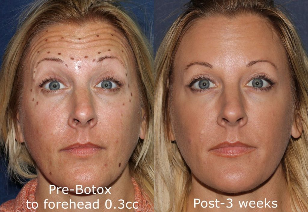 Actual un-retouched patient before and after Botox treatment for forehead wrinkles by Dr. Groff. Disclaimer: Results may vary from patient to patient. Results are not guaranteed.