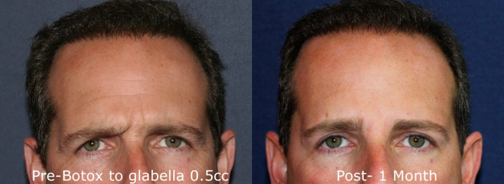 Actual un-retouched patient before and after Botox treatment for forehead and glabellar lines by Dr. Groff. Disclaimer: Results may vary from patient to patient. Results are not guaranteed.