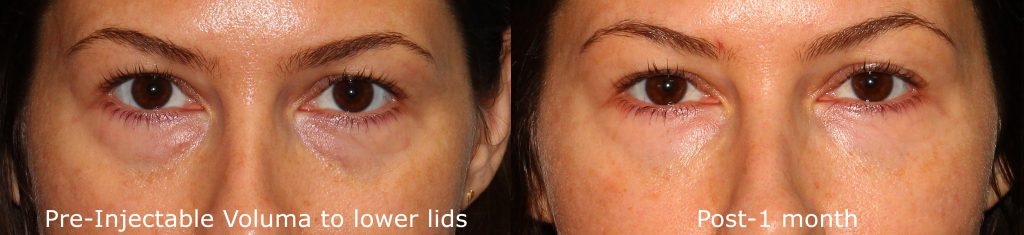 Actual un-retouched patient before and after Voluma injections to reduce bags under the eyes by Dr. Groff. Disclaimer: Results may vary from patient to patient. Results are not guaranteed.