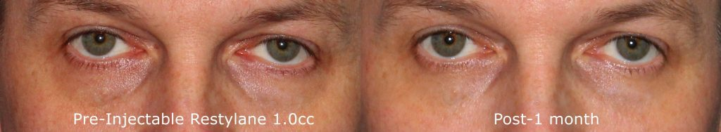 Actual un-retouched patient before and after Restylane injections to reduce dark circles under the eyes by Dr. Groff. Disclaimer: Results may vary from patient to patient. Results are not guaranteed.