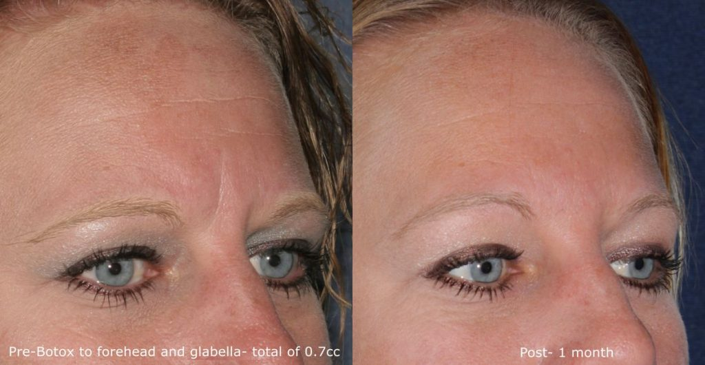 Actual un-retouched patient before and after Botox  treatment for glabellar lines by Dr. Groff. Disclaimer: Results may vary from patient to patient. Results are not guaranteed.