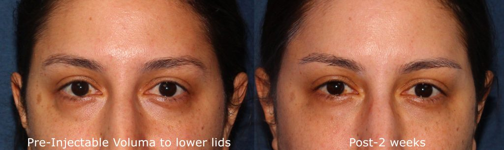 Actual un-retouched patient before and after Voluma injections to reduce hollowing under eyes by Dr. Groff. Disclaimer: Results may vary from patient to patient. Results are not guaranteed.