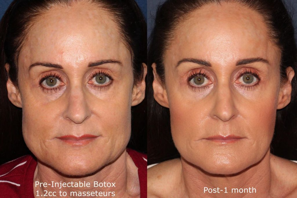 Actual un-retouched patient before and after Botox treatment for jawline reduction by Dr. Groff. Disclaimer: Results may vary from patient to patient. Results are not guaranteed.