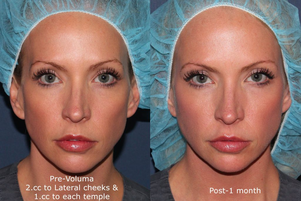 Actual un-retouched patient before and after Voluma injections to augment the cheeks and temples by Dr. Groff. Disclaimer: Results may vary from patient to patient. Results are not guaranteed.