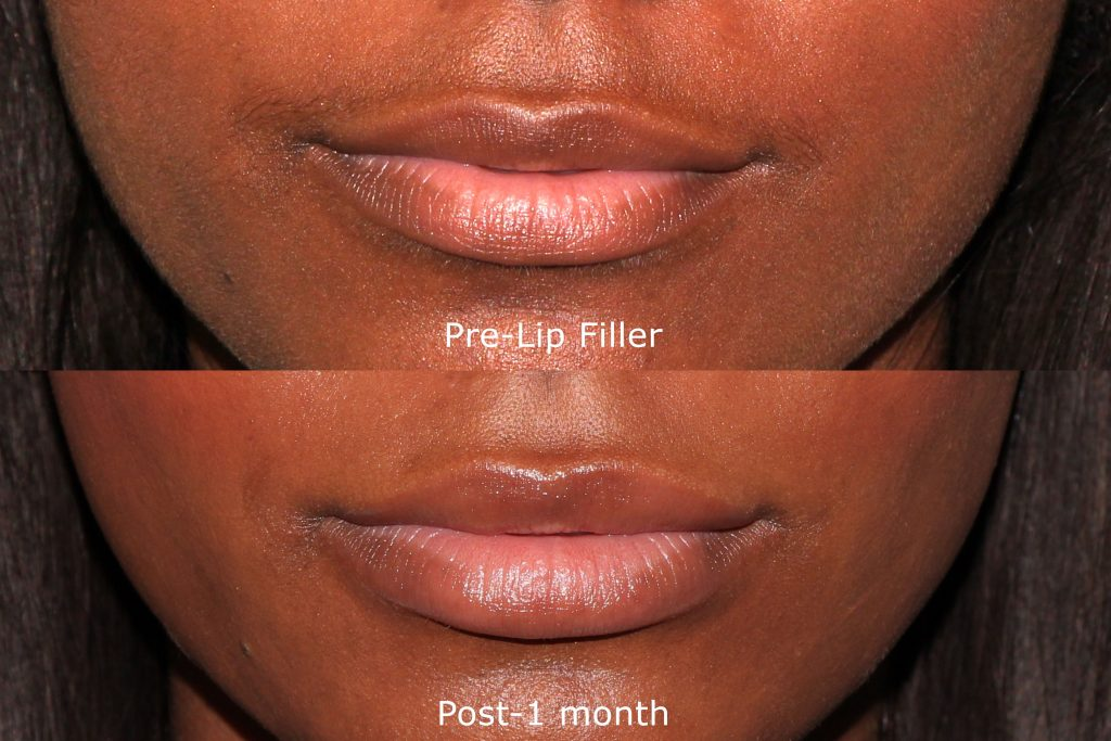 Actual un-retouched patient before and after filler injections to augment the lips by Dr. Groff. Disclaimer: Results may vary from patient to patient. Results are not guaranteed.