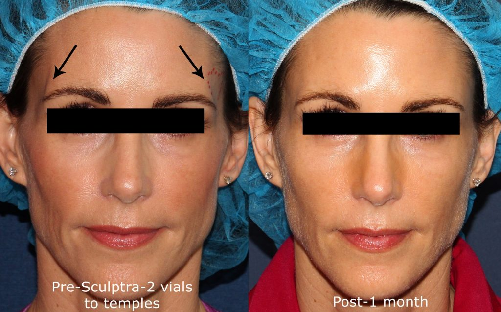 Actual un-retouched patient before and after Sculptra injections to add fullness to the temples by Dr. Groff. Disclaimer: Results may vary from patient to patient. Results are not guaranteed.