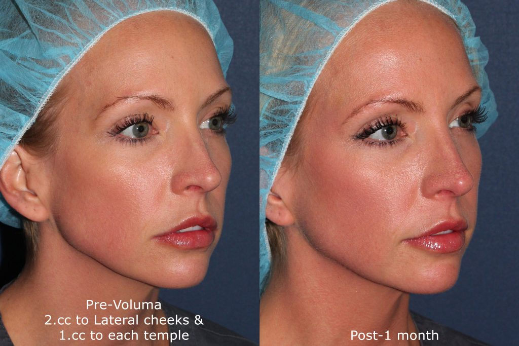 Actual un-retouched patient before and after Voluma injections to augment the cheeks and temple by Dr. Groff. Disclaimer: Results may vary from patient to patient. Results are not guaranteed.
