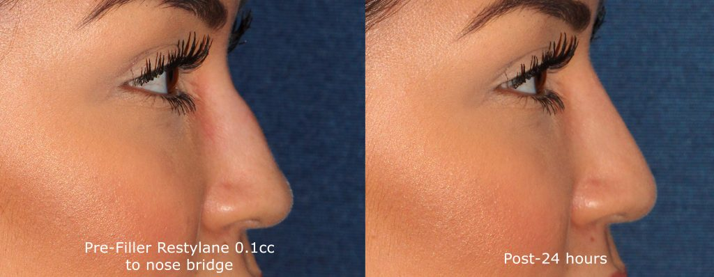 Actual un-retouched patient before and after Restylane injections to reduce a nose hump by Dr. Groff. Disclaimer: Results may vary from patient to patient. Results are not guaranteed.