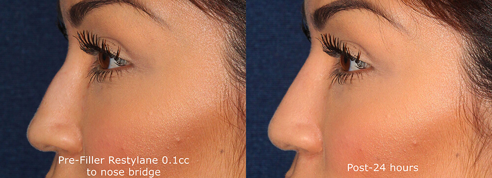 Before and after side image of Restylane treatment on a female's nose bump performed by Dr. Groff at our San Diego medical clinic