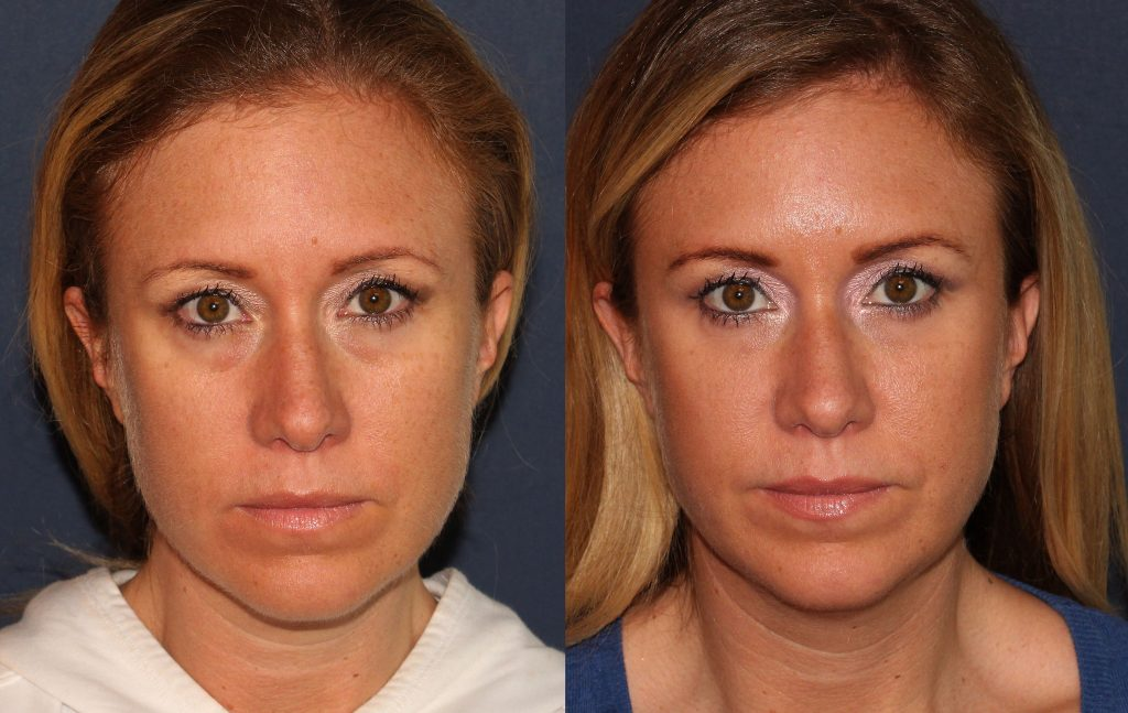 Actual un-retouched patient before and after Restylane injections to treat hollows under the eyes by Dr. Groff. Disclaimer: Results may vary from patient to patient. Results are not guaranteed.