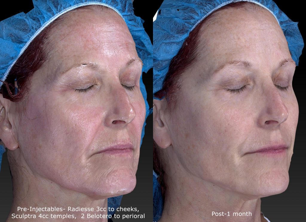 Actual un-retouched patient before and after Radiesse injections to augment the cheeks by Dr. Fabi. Disclaimer: Results may vary from patient to patient. Results are not guaranteed.